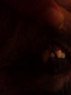 ピカピカの歯